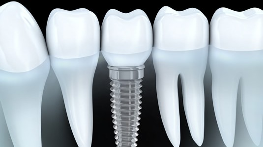 implantes-dentales-1-535x300